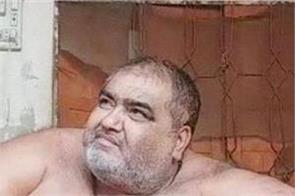 pakistan heavy person death hospital liposuction surgery