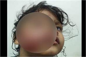 slum dog bite four year old girl s mouth