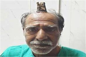 horns on mp s head doctor shocked upset