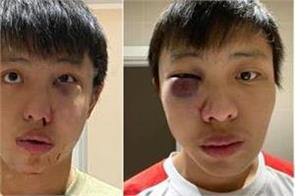 asian student assaulted in  racist  coronavirus attack in uk
