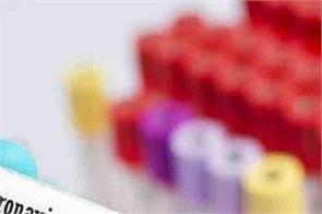1024 new cases of corona virus confirmed in delhi