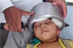 head of 1 year old girl trapped in pressure cooker