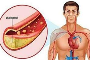 cholesterol boosting food also increases your weight