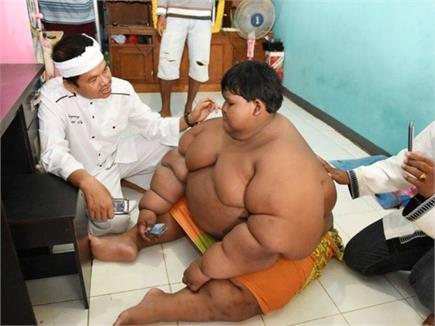 दुनिया के सबसे मोटे लड़के ने घटाया वजन, अब दिखता है एेसा