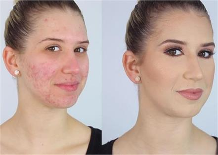 home remedies for remove pimple on face