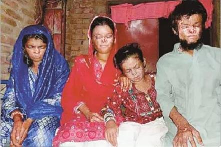 pakistan these 4 brothers and sisters face death every day curse of sunlight