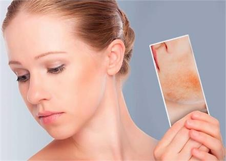 why do skin pigmentation occur how to treat them