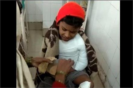 petrol sprinkled on 10 year old child and set fire