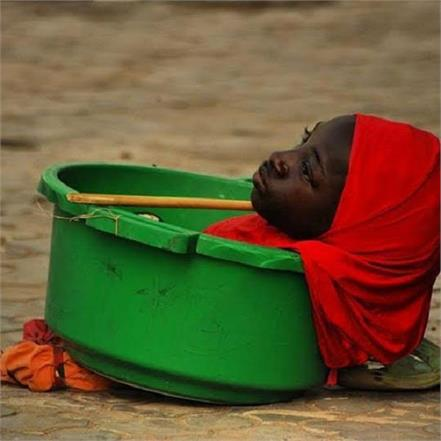 limbless teen rahma haruna who lived in plastic bucket