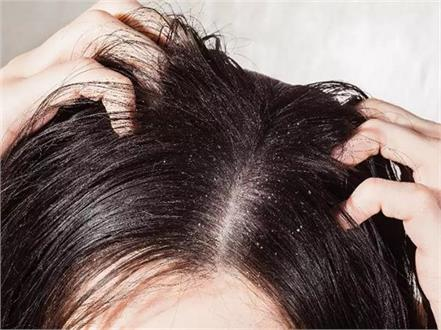 to get rid of dandruff use mouth freshener in this way