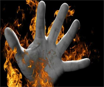 bareilly wife did not like black husband burned alive