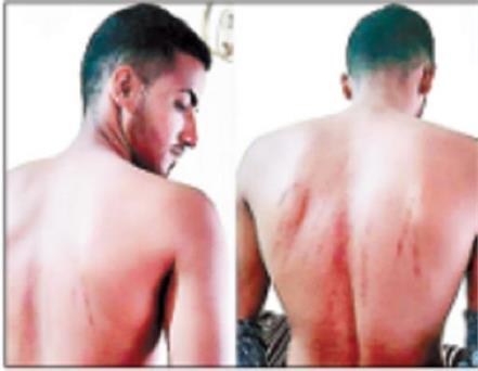 beaten man on road